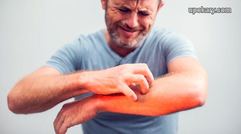 itching-skin (1)