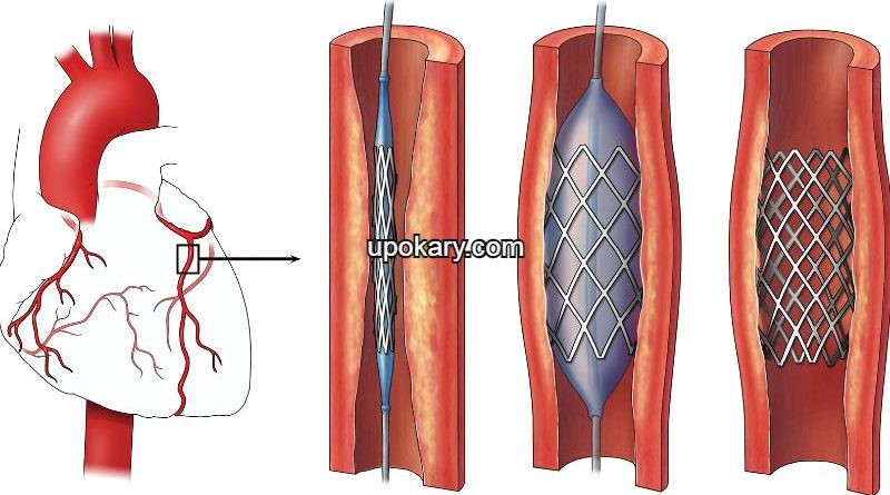 Angioplasty or Stent