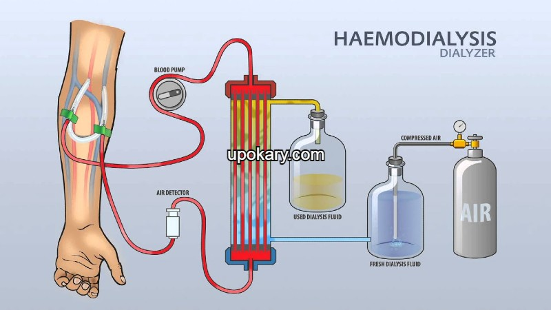 haemodyalysis
