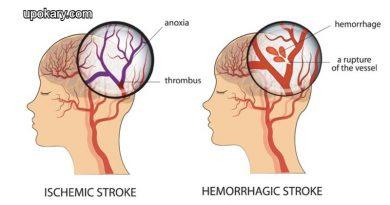 haemorrhagic